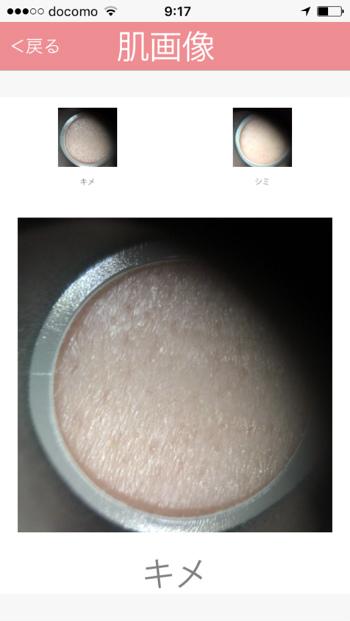 ヒフミド利用後の肌のキメ