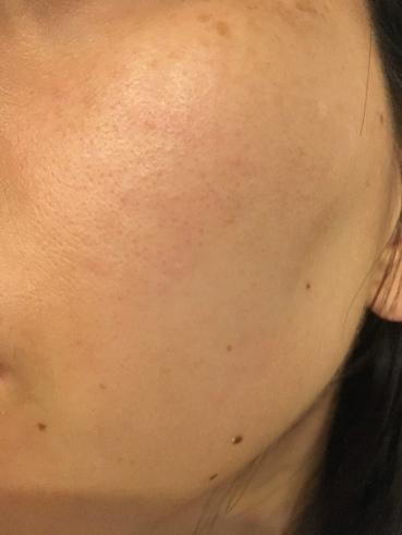 リペアジェルを使用する前の肌の状態